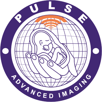 cropped-Pulse-Logo-png-removebg.png